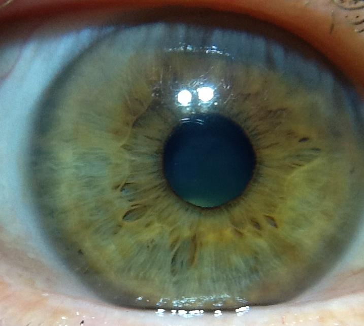 Eye_R